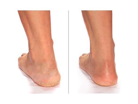 Advanced Clinicals Cracked Heel Cream